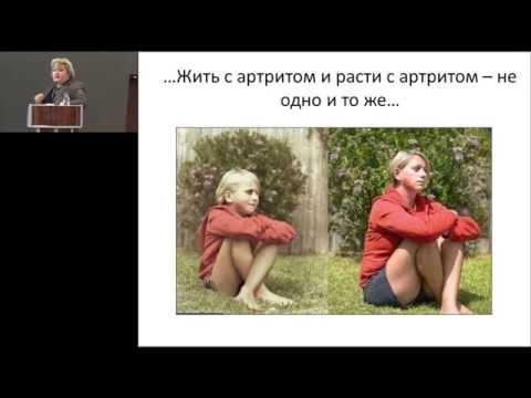 12.02.2016 - Никишина И.П. Проблемы преемственности в курации пациентов с ювенильным артритом