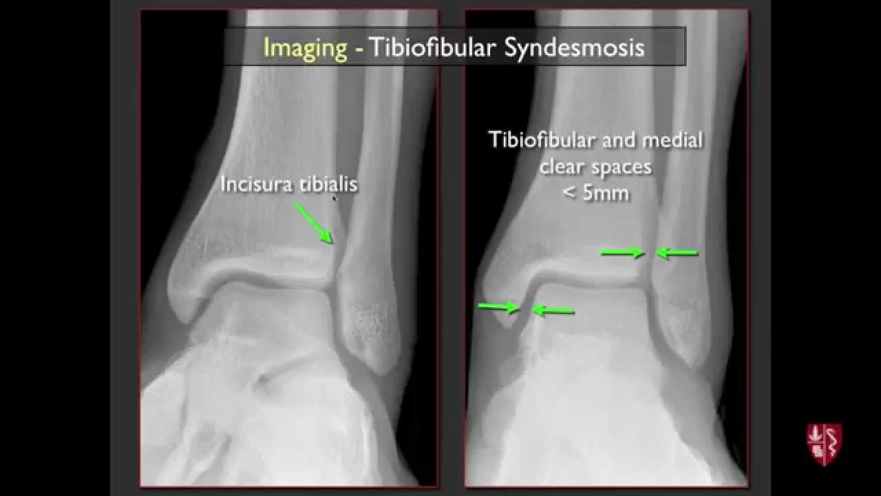 Imaging of the Tibiofibular Syndesmosis and High Ankle Sprain - YouTube