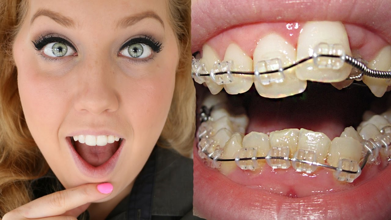 Considering Clear Braces Read About Types And Costs In The Us