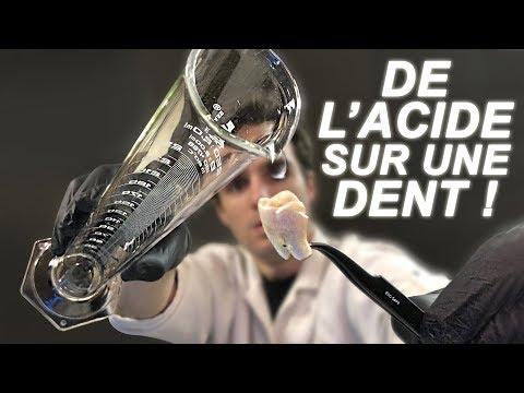 DE L'ACIDE SUR UNE DENT ! Will It Dissolve
