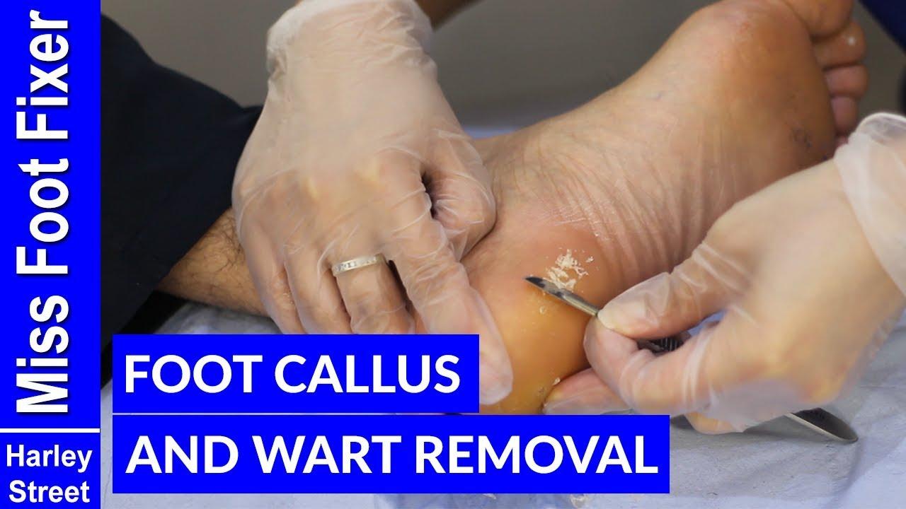 foot wart callus wart treatment natural