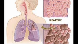 CHRONIC OBSTRUCTIVE PULMONARY DISEASES , HEALTH EDUCATION , INFECTION CONTROL (ICSP) , URDU / HINDI