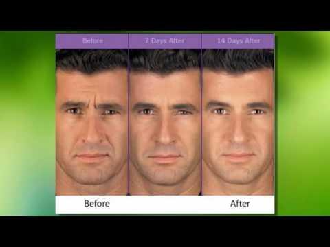 Botox Arlington Tx Bioderm Skin Care Laser Center Youtube