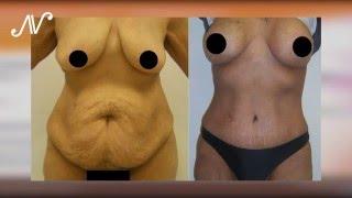 Dr. Antonio Viana -  Cirugia Plástica del abdomen