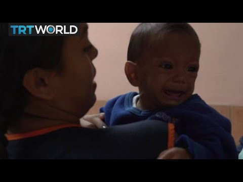 Venezuela Child Malnutrition: Families struggle to provide bare minimum
