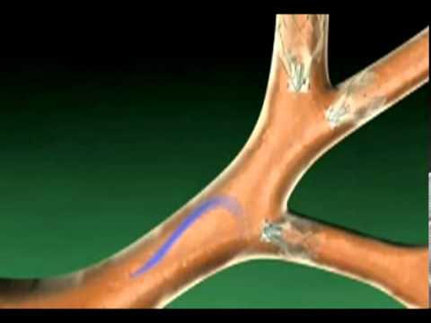 Эмфизема легких. Пульмонология