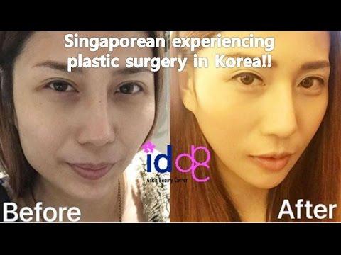 Singaporean Undergoing V Line Surgery In Korea Plastic