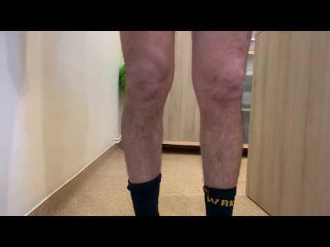 tratamentul articulației genunchiului Donețk dacă articulațiile mâinilor doare cum să ajute