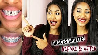 Braces Update! Before & After Thumbnail