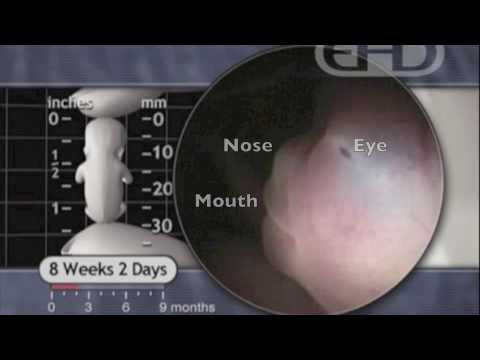 Video of abortion at 8 weeks