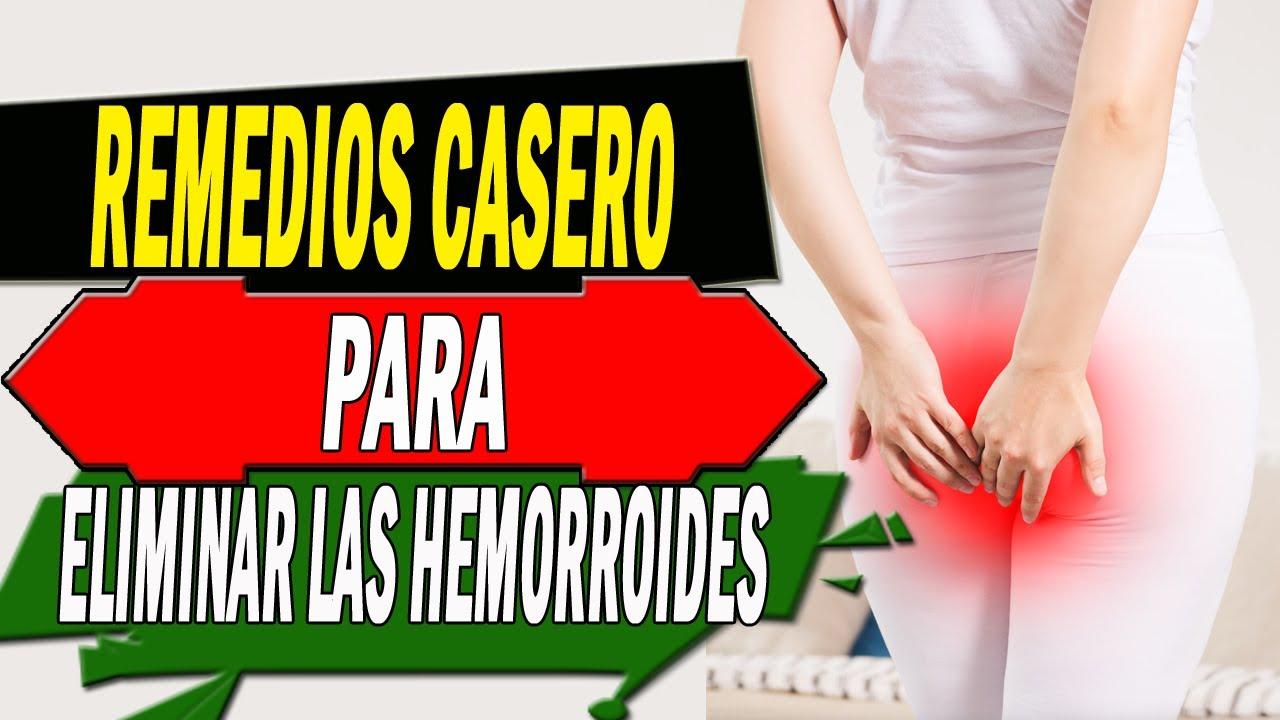 Radica totalmente las hemorroides con este remedio casero | #HEMORROIDES