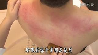 【健康大探索】20180801 - 刮痧 去濕 清熱