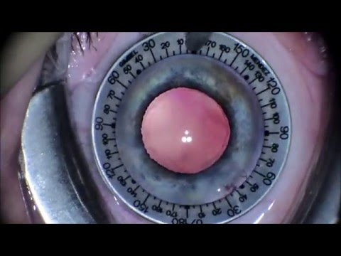Cataract Surgery with