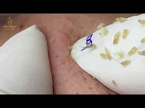 ACNE REMOVAL to have glowing skin care (91) |Loan Nguyen