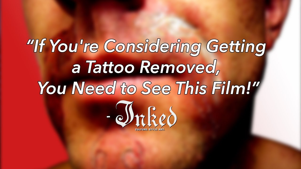 D\'Inked - A Tattoo Removal Documentary - Trailer - YouTube