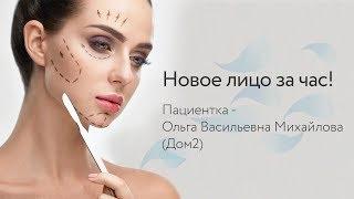 Новое лицо за час! Пациентка - Ольга Васильевна Михайлова (Дом2)