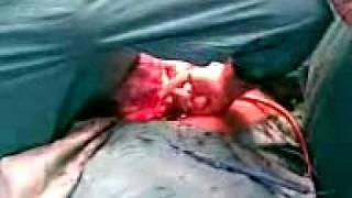 Dr. M Khan Wazir Peshawar Video  of Big Ovarian Mass 12 Kg