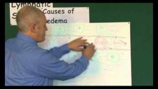 Causes of Edema (Oedema)