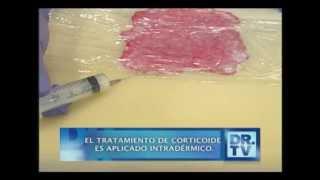 Doctor TV: ¿Qué es la Psoriasis? - 21/11/2012