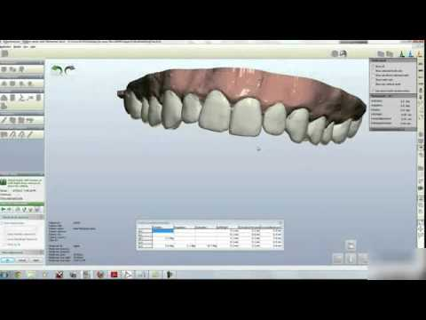 3D Orthodontic Treatment - K Line clear aligners