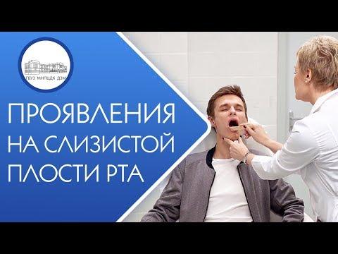 👄 Диагностика и лечение заболеваний слизистой полости рта. Заболевания слизистой полости рта. 12+