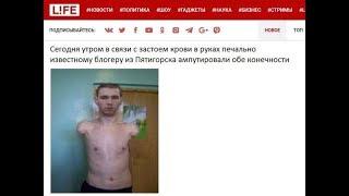 Кирилу Терешину сегодня отрезали руки.Kirila Tereshina today cut off hands.