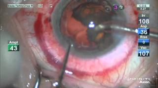 Stephen Slade MD LIVE Laser Cataract Surgery