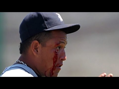 MLB Broken bones (HD)