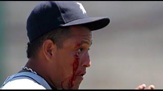 MLB Broken bones HD