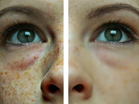 How To Get Rid Of Freckles - Youtube