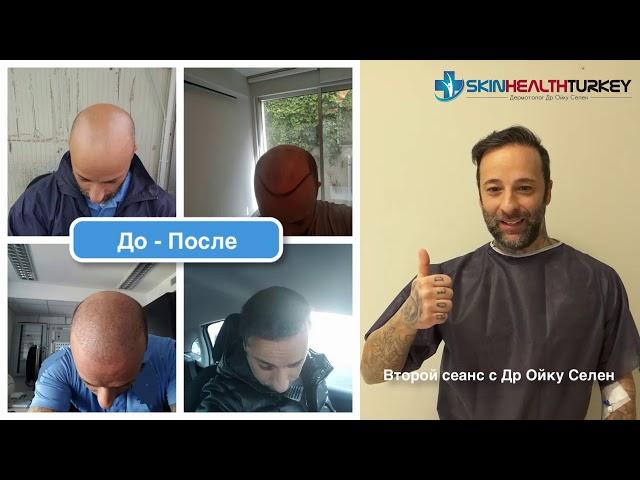 Пересадка волос до и после - Доктор Oyku Celen  -  Пересадка Волос в Турции