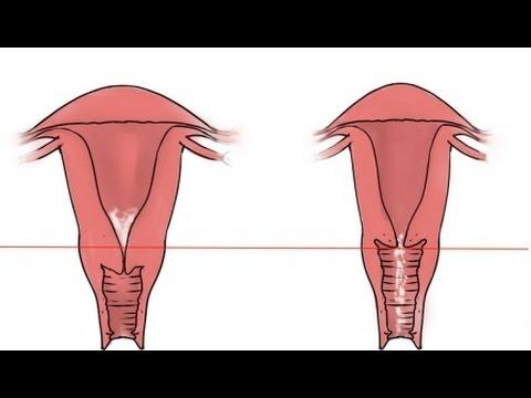 Aprende a comprobar tu posición cervical para saber si eres fértil