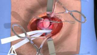 Inguinal Hernia Surgery 3D Medical Animation - Open Procedure