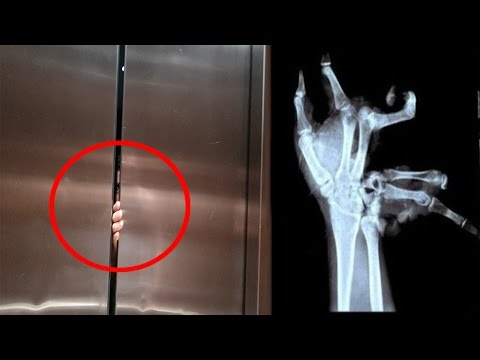 ELEVATOR CRUSHED HIS HAND!