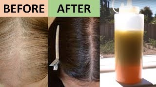 7 DAY HAIR GROWTH MIRACLE TREATMENT THAT PROMOTES HAIR GROWTH FROM THE ROOTS Natural Home Remedies