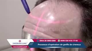 Processus d'opération de greffe de cheveux