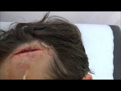 Forehead wound repaired with