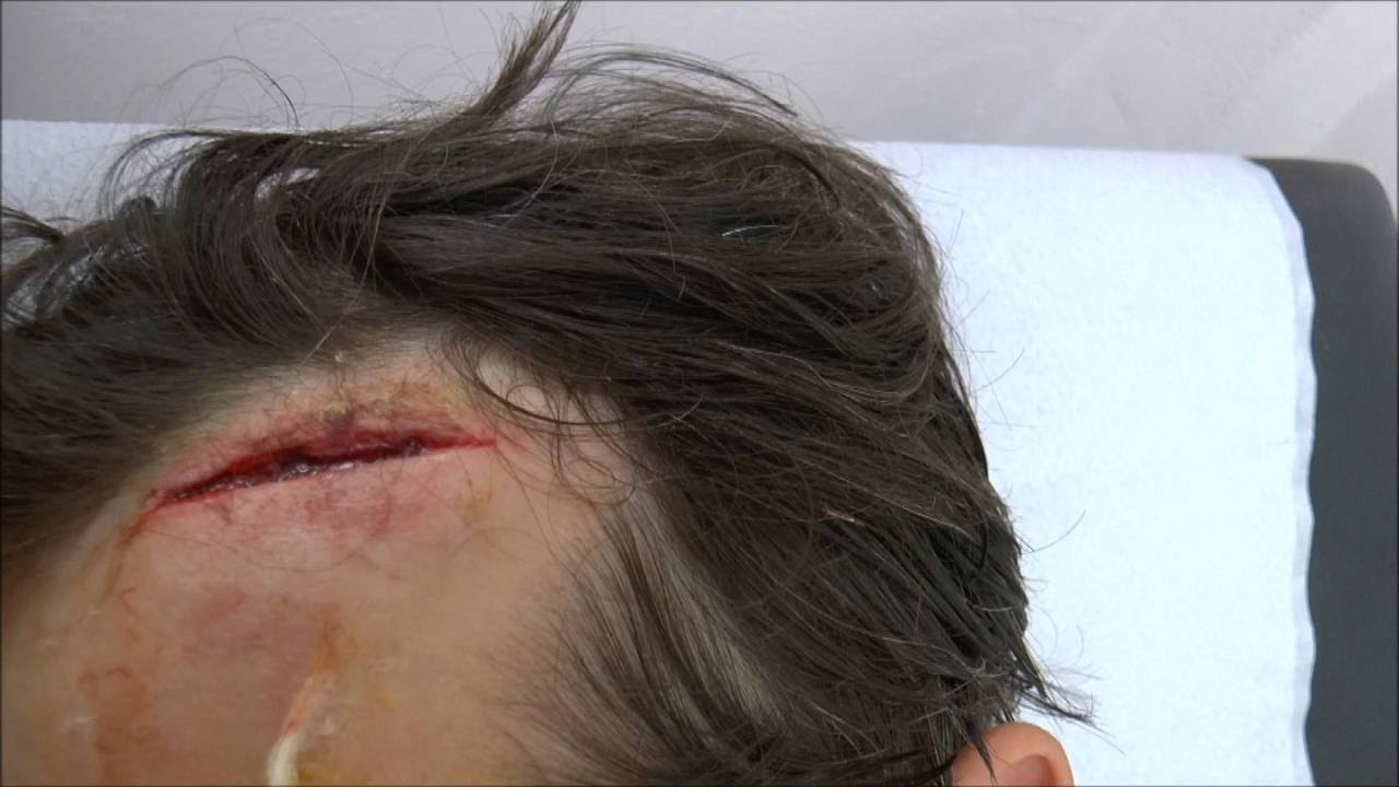 Forehead Wound Repaired With Liquiband Glue Youtube