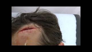 "Forehead wound repaired with ""Liquiband"" glue"