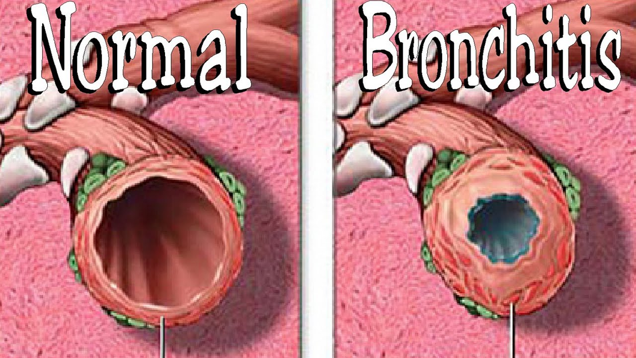 chronic bronchitis Chronic bronchitis is a type of chronic obstructive pulmonary disorder that causes obstruction to airflow and makes breathing difficult.