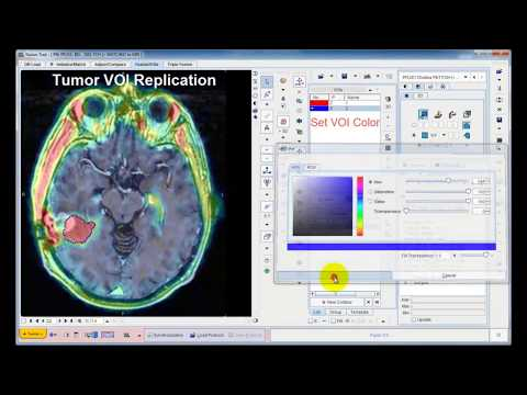 PFUS Tool for Image Registration and Fusion (Overview)