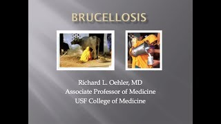 Brucellosis -- Richard Oehler, MD