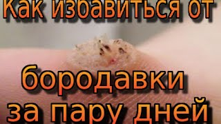 видео как избавится от бородавки