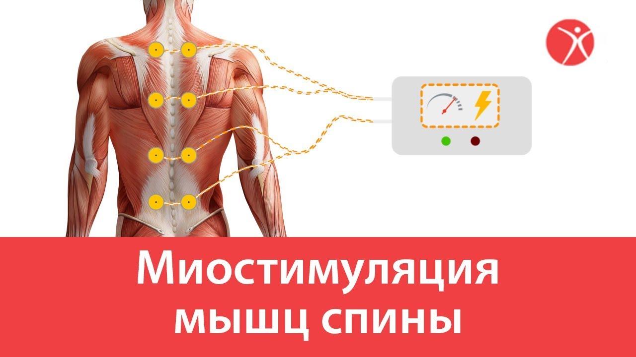 Миостимуляция мышц спины