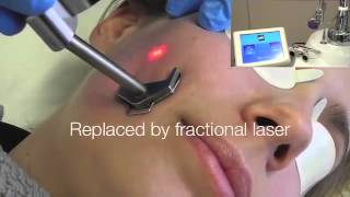 Skin needling for acne scars - Acne Scarring Removal - Brisbane Dermatologist | Acne Specialists