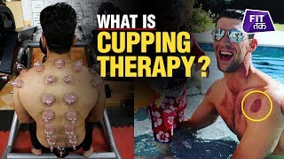 What Is Cupping Therapy?   Fit Tak