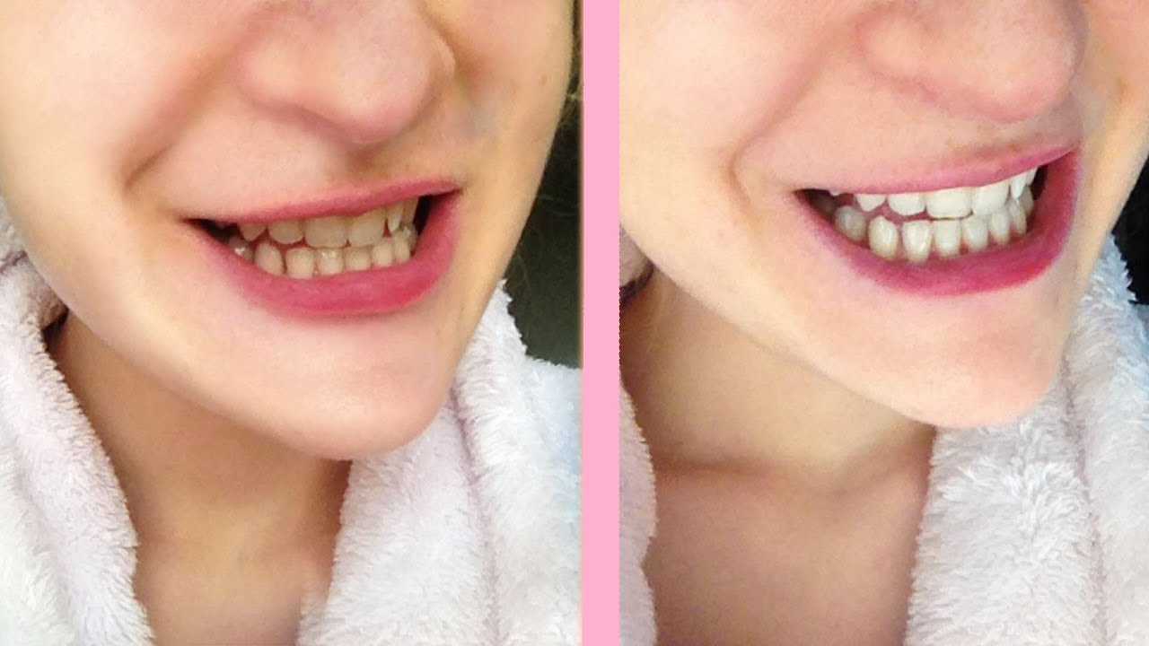 Deixar Os Dentes Mais Brancos Receita Simples Caseira Youtube