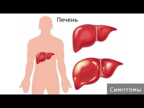 Гепаторенальный синдром. Как лечить гепаторенальный синдром.