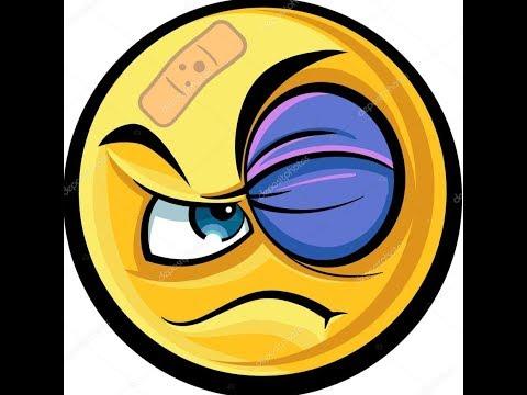 Здравые советы по лечению гематомы глаз (синяков).
