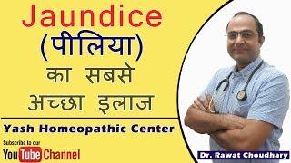 Jaundice (पीलिया) का सबसे अच्छा इलाज | Best Treatment of Jaundice